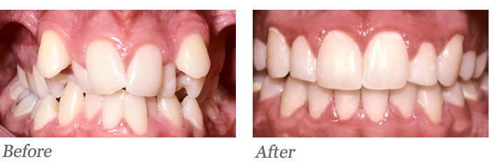 Crowding Teeth Before And After | www.pixshark.com ...