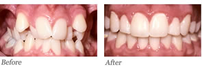 This patient had severely crowded teeth. The extraction of four teeth was carried out to provide sufficient room to align his teeth.