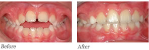 This patient is age nine. He had no digital habit but a large open bite. A limited number of braces were used.