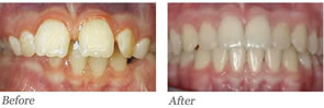 This was a two-phase orthodontic treatment that initially utilized the orthopedic correction of the jaws to reduce his overbite.