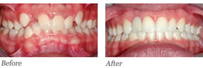 This patient had a missing lateral incisor. Braces were used to open space for future crown to be placed by the general dentist.