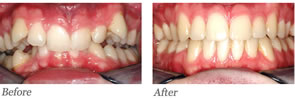 This patient had a deep overbite and crowding. Treatment involved full braces for 48 months including jaw surgery to move his lower jaw forward.